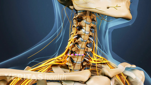 Medical illustration of the cervical spine, nerves are visible.