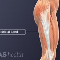 Profile view of the iliotibial band anatomy