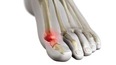 Turf Toe Treatment