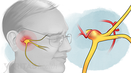 Trigeminal nerve being compressed by a blood vessel