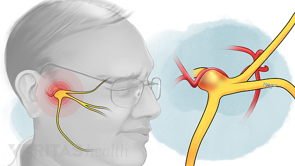 Illustration of trigeminal nerve being compressed by a blood vessel