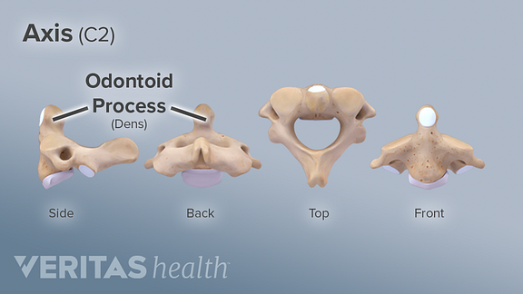Medical illustration of the odontoid process on the C2 cervical vertebra