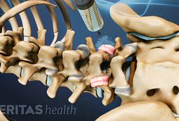 Lumbar Rhizotomy Side Effects Cervical Radiofrequency