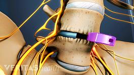 Medical illustration showing an ALIF cage implant