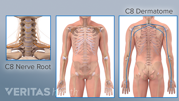 If the C8 nerve is irritated, it can cause pain in the C8 dermatome, which covers the lower part of the shoulder and goes down the arm into the pinky side of the hand.