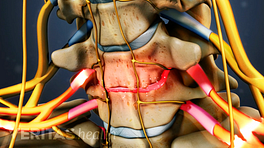 Anterior view of nerve root compression from cervical degenerative disc disease