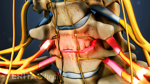 Animated video still of nerve root compression from cervical degenerative disc disease