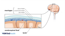Anatomy of meningitis in the spinal fluid
