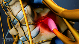 Animated video still of spinal stenosis causing nerve impingement in cervical spine