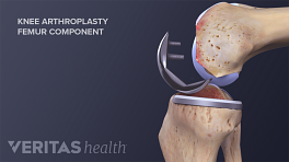 Illustration showing the patellar component of an artificial knee
