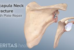 treating scapula fractures