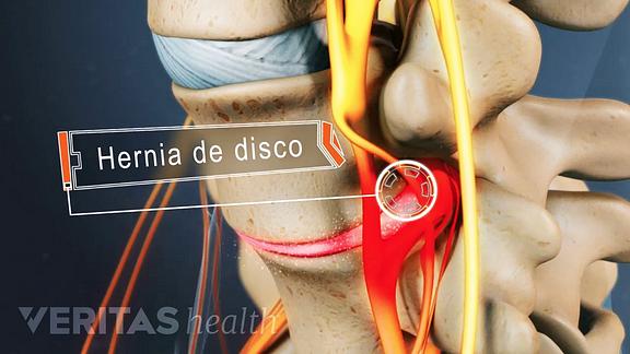 Nervio ciatico inflamado sintomas
