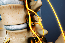 Spinal stenosis stenosis is a narrowing of the bone channel occupied by the spinal nerves or the spinal cord.