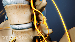 Medical illustration showing nerve roots in the spine exiting through the foramen.