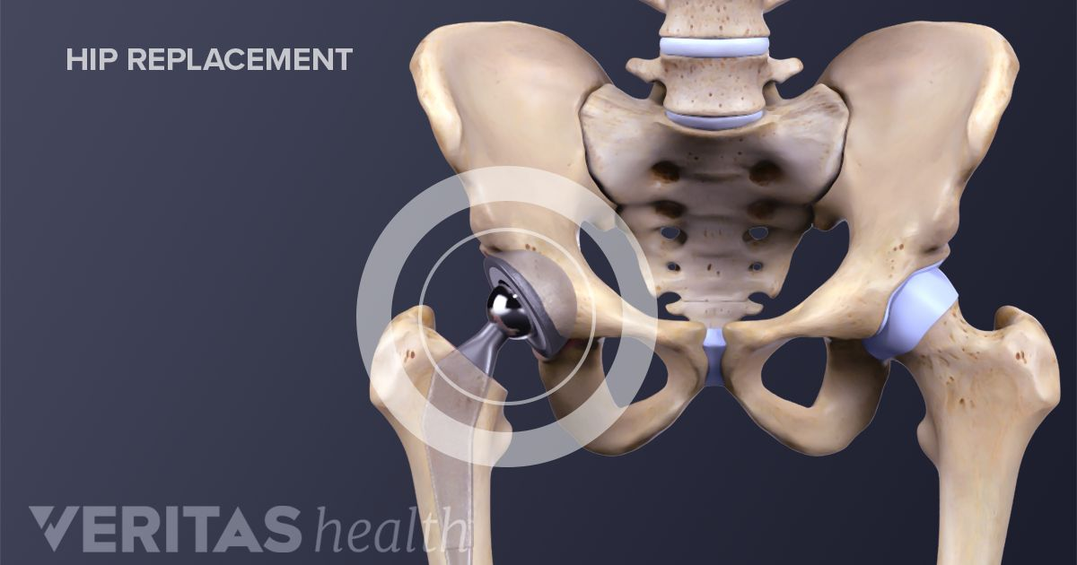 Total Hip Replacement Surgery Recovery