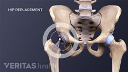 Hip Replacement