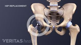 Medical illustration showing a completed hip replacement