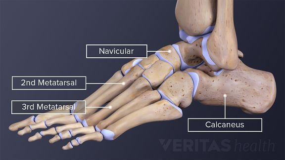 Lateral view of the bones of the foot labeling 2nd metatarsal, 3rd metatarsal, navicular, and calcaneus.
