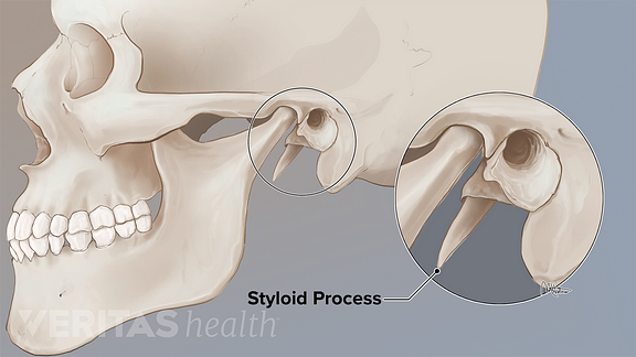 Illustration of the styloid process