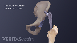 Medical illustration of a femoral stem being inserted into the femus as part of a total hip replacement