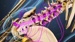 Medical illustration showing the cauda equina nerve roots in the lumbar spine