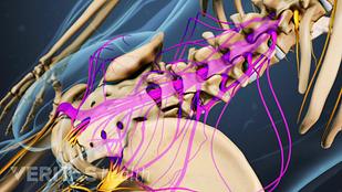 cauda equina nerve roots