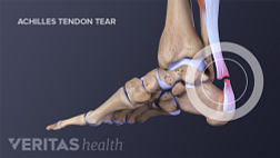Medical illustration of an adult Achilles tendon rupture