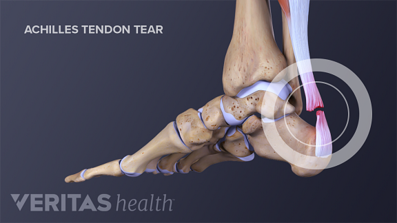 Achilles tendonitis refers to inflammation in the Achilles tendon.