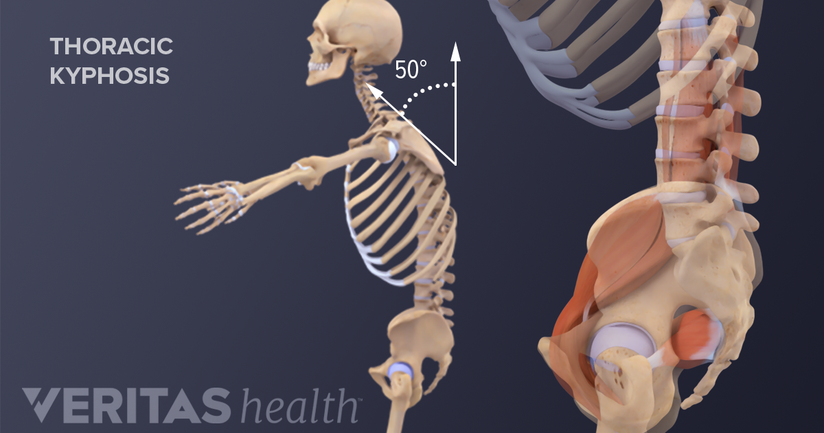 All About Kyphosis