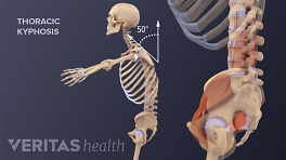Profile vide of pelvis and whole body showing thoracic kyphosis.