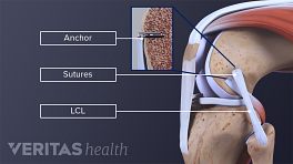 LCL Tear surgery labeling the anchor, sutures, and LCL.