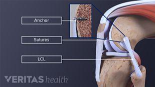 LCL Tear Treatment