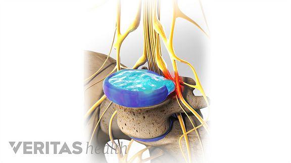 treatment options for a lumbar herniated disc, Cephalic Vein