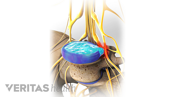 A herniated disc causing compression on the cauda equina nerve.