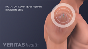 The four muscles of the rotator cuff help to provide the shoulder with mobility and stability.