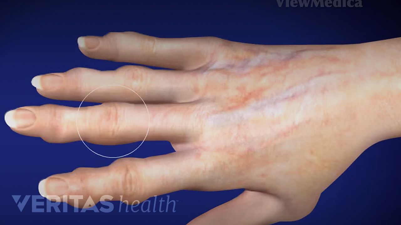Hand Osteoarthritis Video | Arthritis-Health