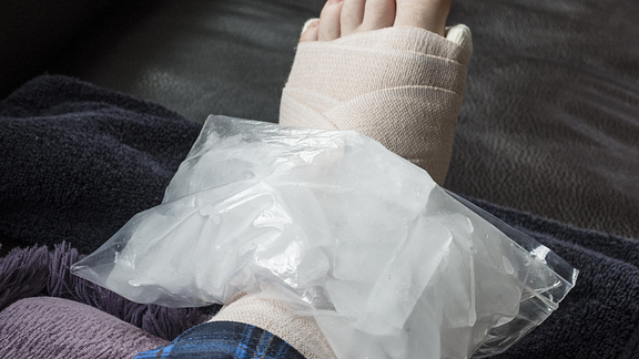 Image of  bag of ice on wrapped foot.