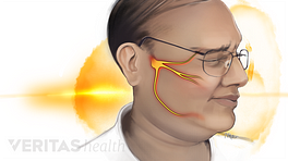 Person experiencing face pain from trigeminal neuralgia