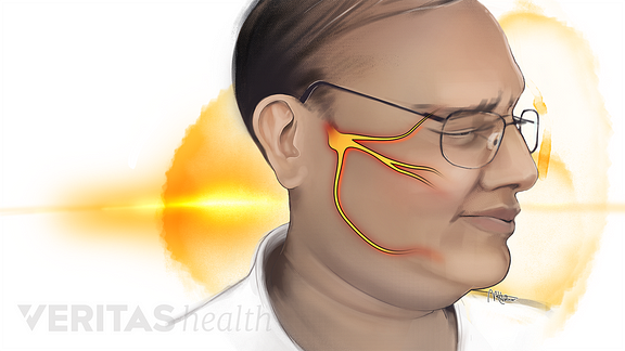 Illustration of person experiencing face pain from trigeminal neuralgia