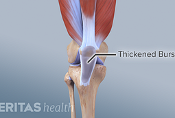 Thickened bursa in knee