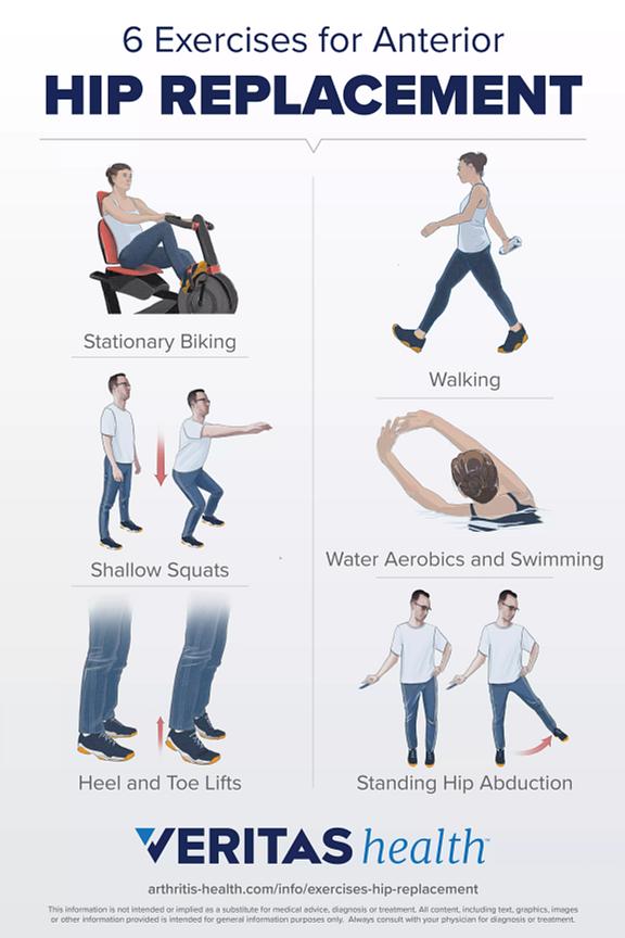 6 Anterior Hip Replacement Exercises