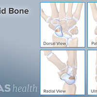 Dorsal, palm, radial, and lateral views of the scaphoid bone