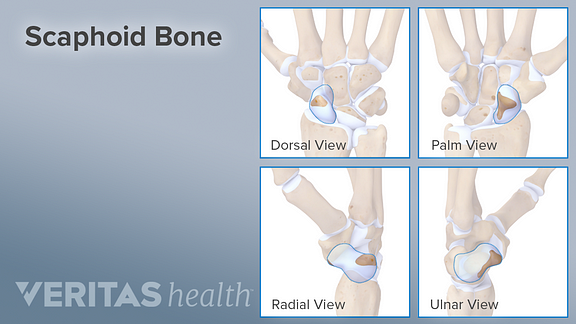 Illustration showing the dorsal, palm, radial, and lateral views of the scaphoid bone