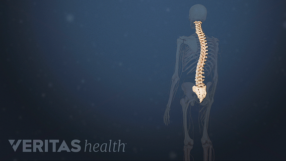 Animated video still of a spine with a thoracic scoliosis curve