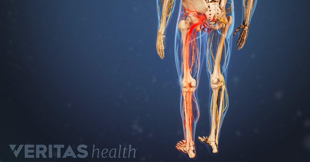 Video de la anatomía del nervio ciático