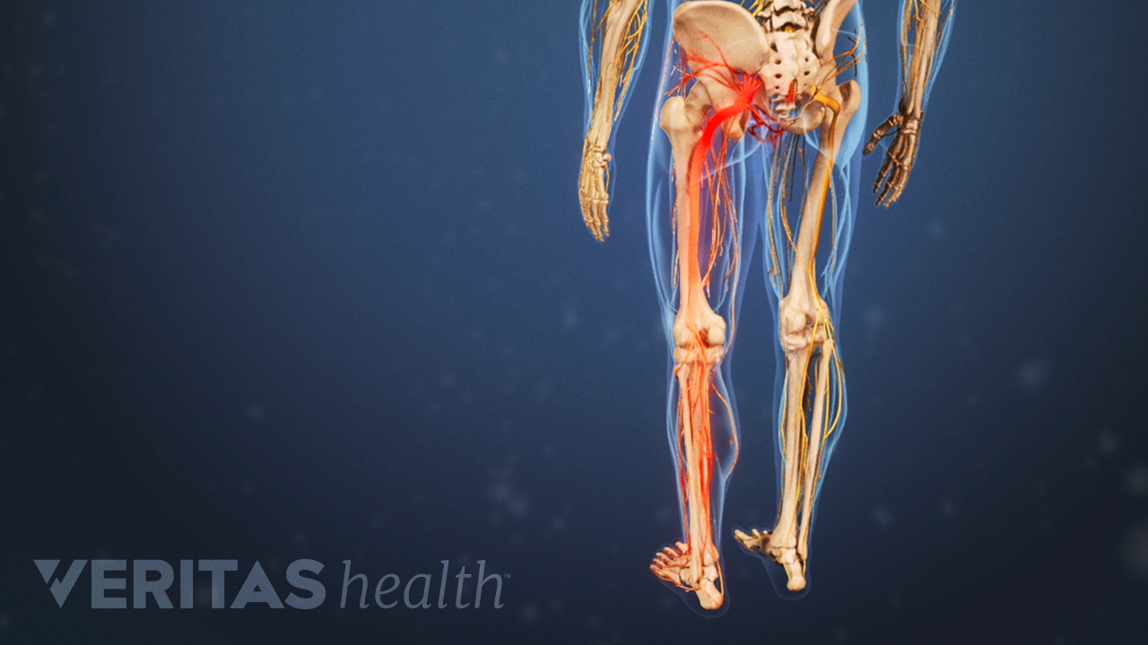Posterior view of the lower body showing sciatica pain in the legs.