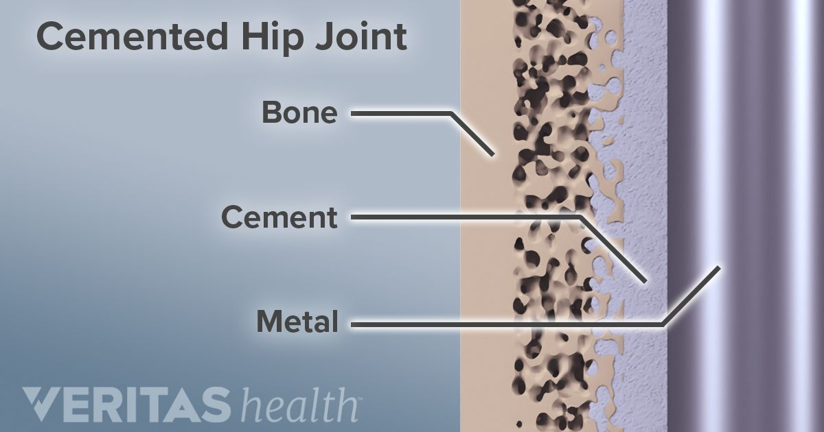Postoperative Care for Hip Replacement