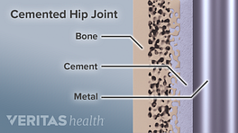 Diagram showing the parts of a cemented hip joint. Bone, cement and metal are labeled
