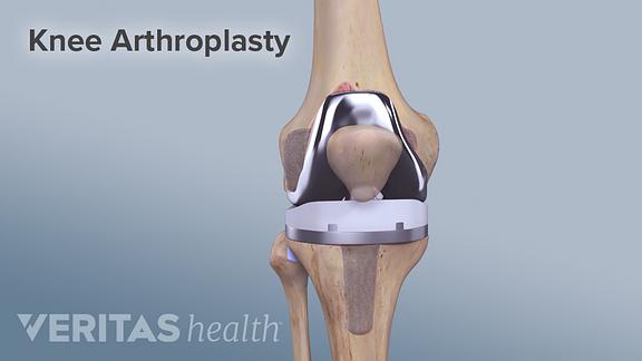 Knee Arthroplasty