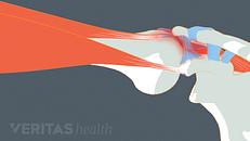 Shoulder Pain: Is it Shoulder Impingement?
